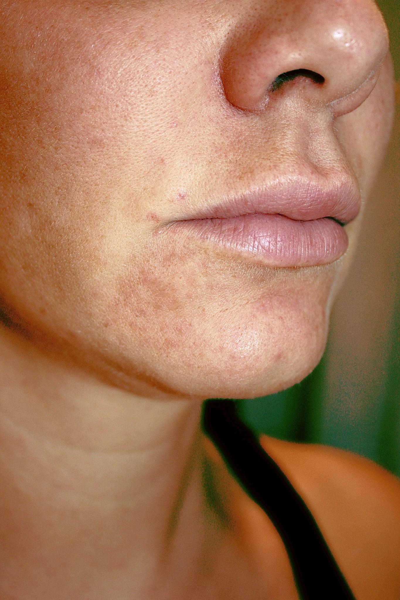 perioral dermatit tetracyklin