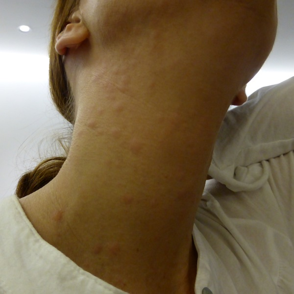 Allergisk reaktion på produkter eller ingredienser
