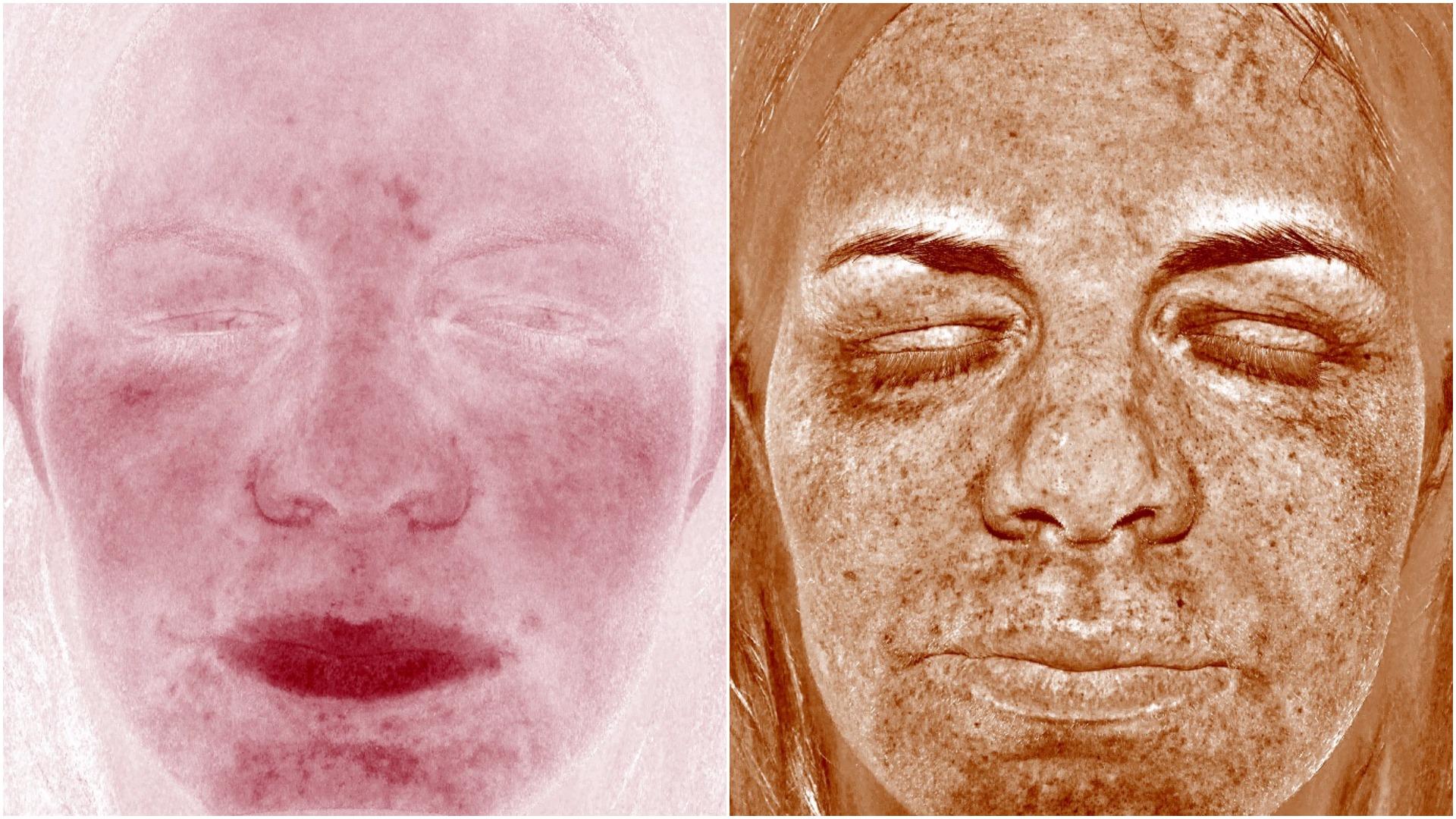 perioral dermatit exuviance