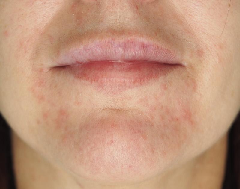 hudvård perioral dermatit