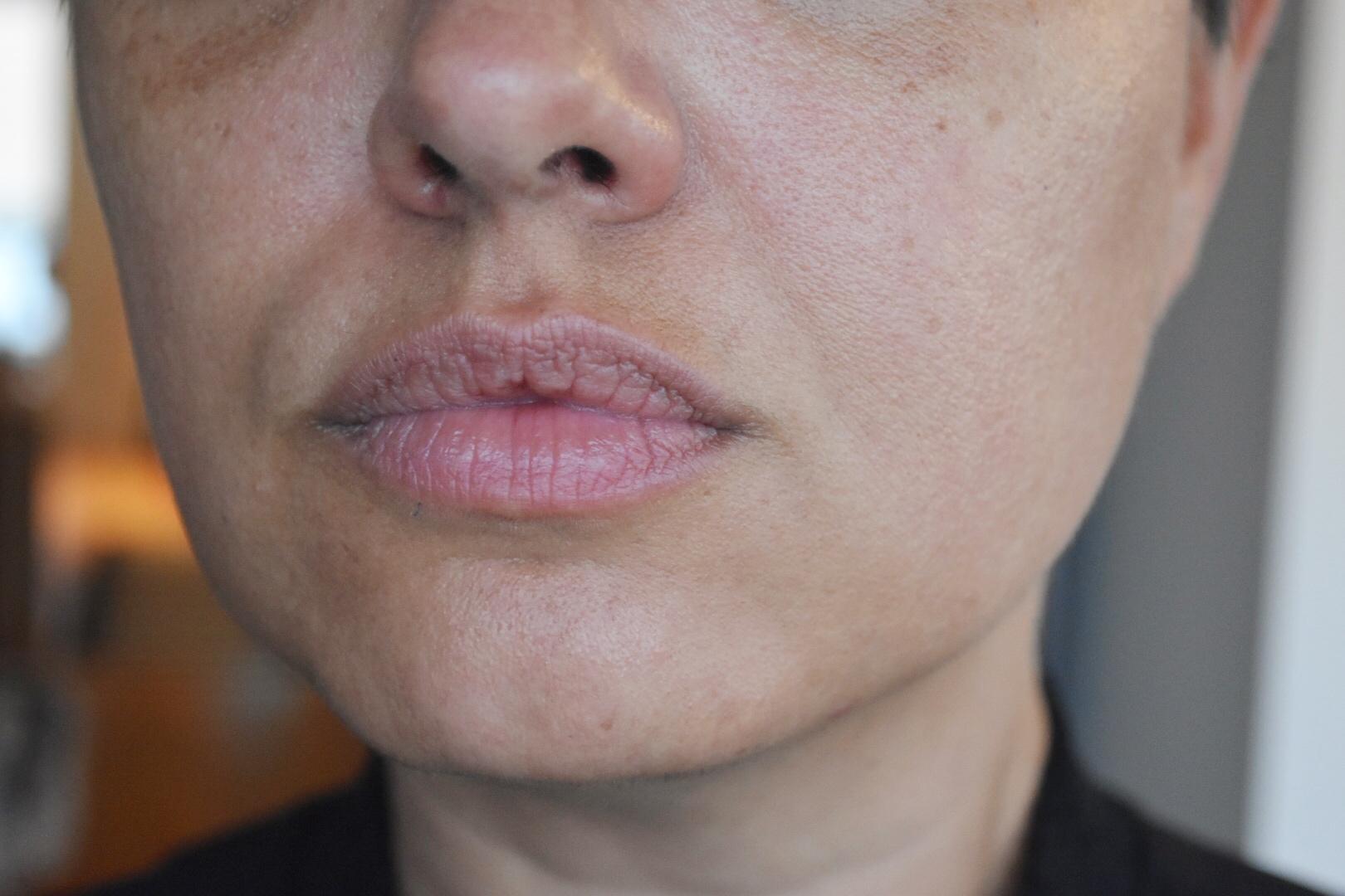oönskad hårväxt i ansiktet