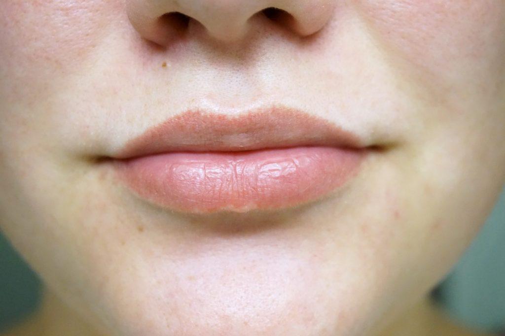 återfuktade läppar utan fnas
