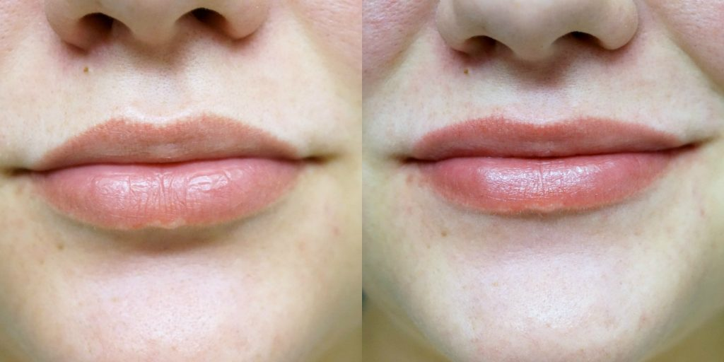 återfuktade läppar med mindre fnas