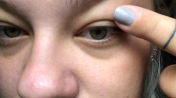 vätskefyllda ögonlock