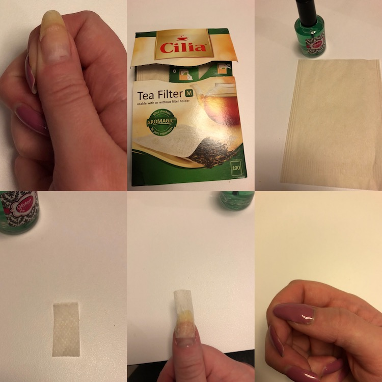 bruten nagel