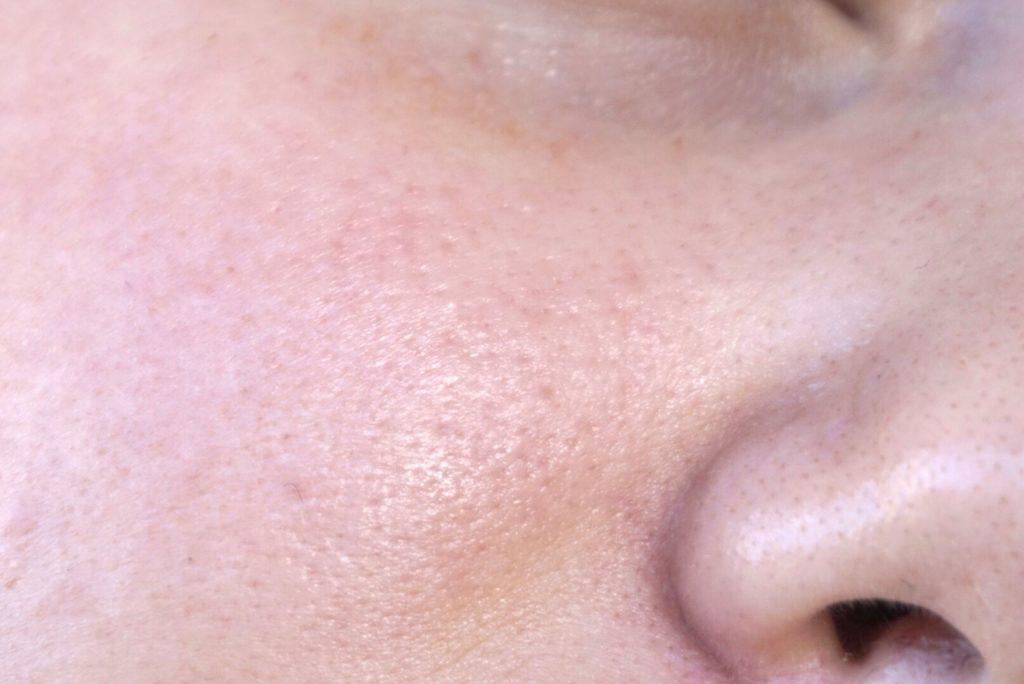 naken hud