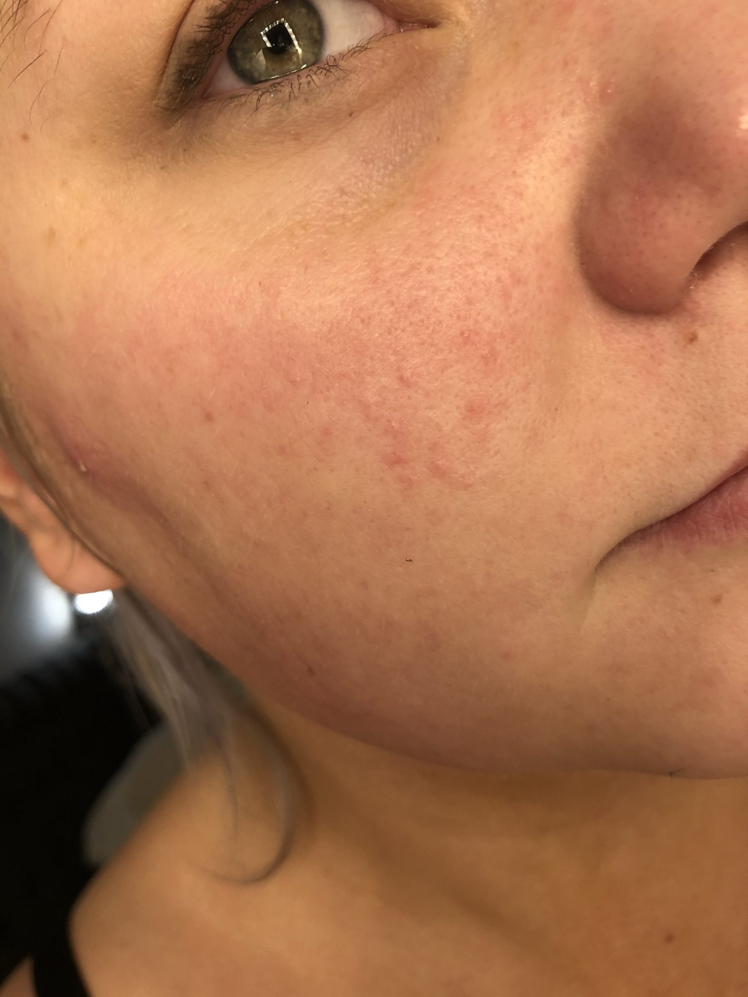 produkterna som räddade min hud