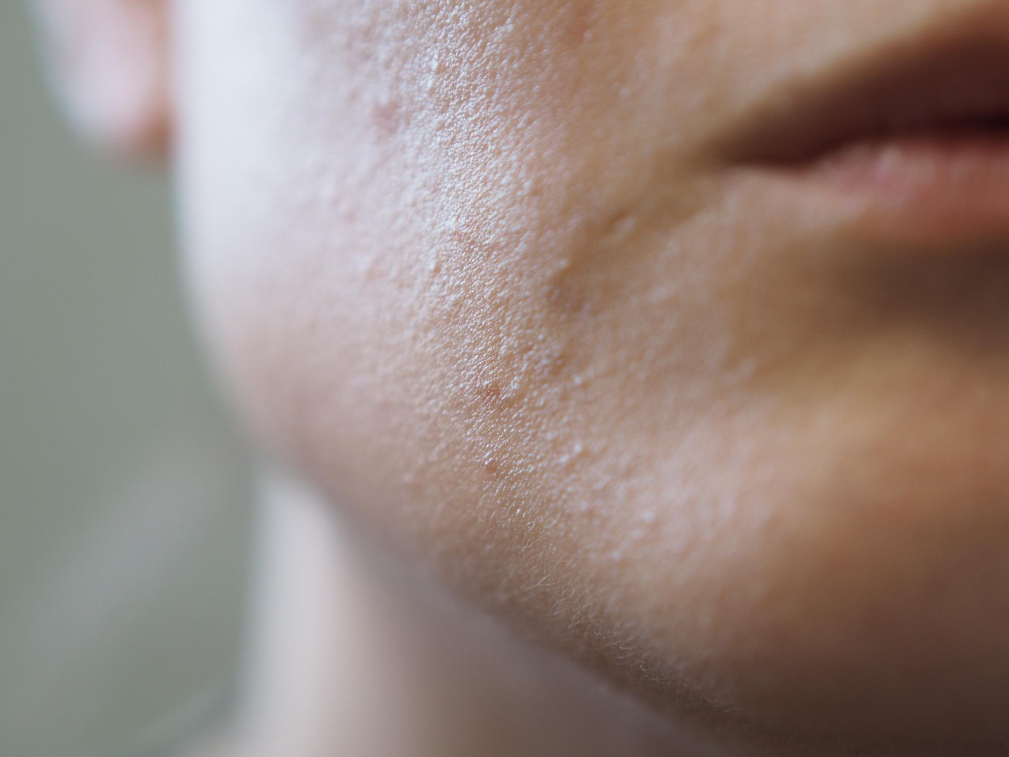 knottrig hud i ansiktet